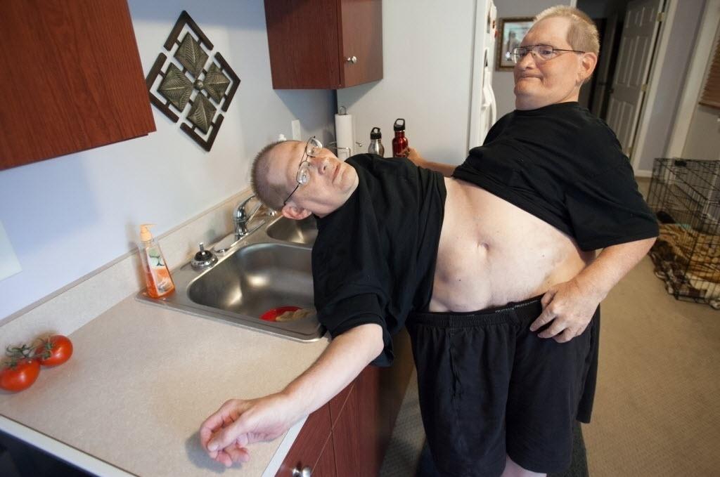 3 de julho de 2014 - Donnie (à esquerda) e Ronnie Galyon (62) andam em busca de água em sua casa em Beavercreek, Ohio, EUA. O reconhecimento do recorde de irmãos siameses mais velhos pode acontecer em outubro, quando completarão 63 anos e atingirão a idade de falecidos gêmeos siameses italianos - Daily News, Drew Simon / AP