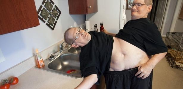 Os gêmeos siameses mais velhos do mundo morrem aos 68 anos nos Estados Unidos.
