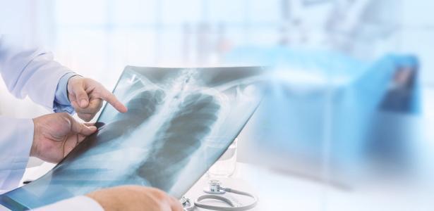 """Médicos ressuscitam pulmões humanos """"inserindo-os"""" em porcos vivos - 17/07/2020"""